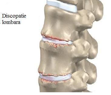 Discopatie lombara