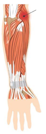 Epicondilita laterala - tennis elbow