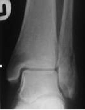 Fractura de maleola / fractura bimaleolara