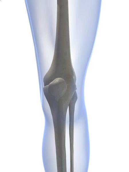 Leziuni , afectiuni ale genunchiului