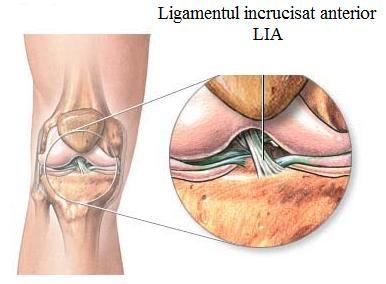 Ligament incrucisat anterior LIA
