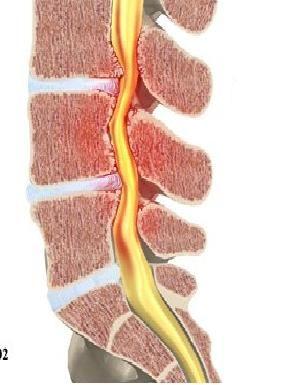 Lombosciatica