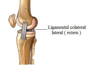 Ruptura , leziune de ligament colateral lateral ( extern )