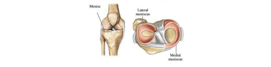 leziuni ușoare ale meniscului genunchiului)